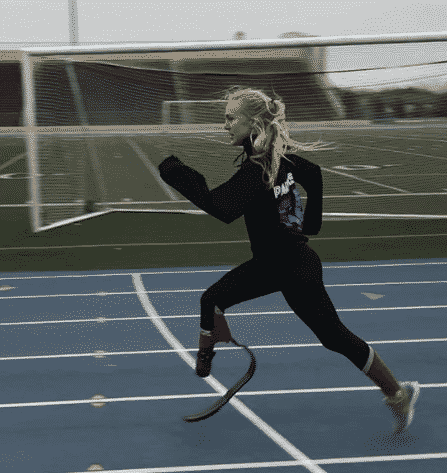 "Track star Jessica ""Jessie"" Heims was diagnosed with Amniotic Band Syndrome when born."